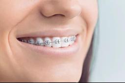 亲历PWD服务,牙齿矫正对颜值的影响如此之大