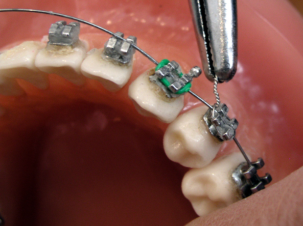 托槽掉了不赶紧这么办,你的牙套可能要多带一年!